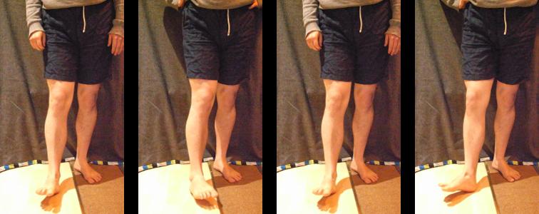 knee pain knee windscreen wiper
