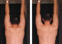 hanging dead hang and scapula lift