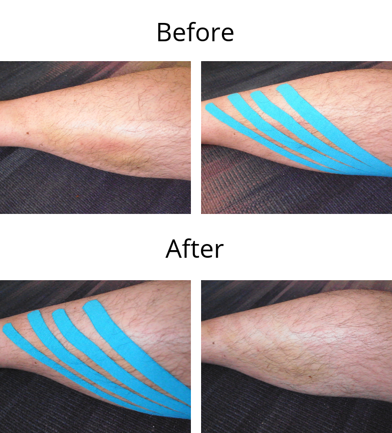 K-taping before after